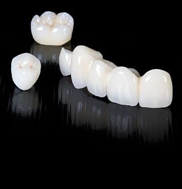 CAD CAM Prótesis Dental
